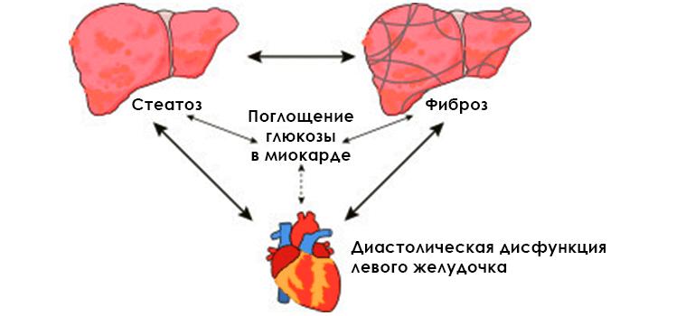 Неалкогольный стеатогепатит связан с субклинической дисфункцией ...