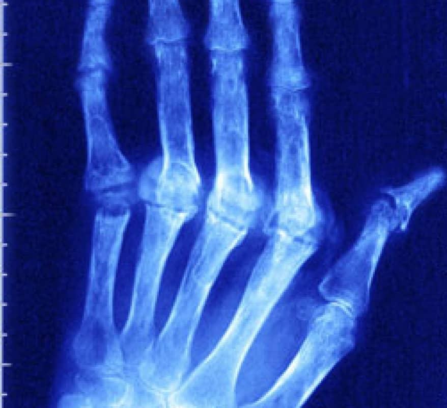 Лечение ревматоидного артрита при гепатите с thumbnail