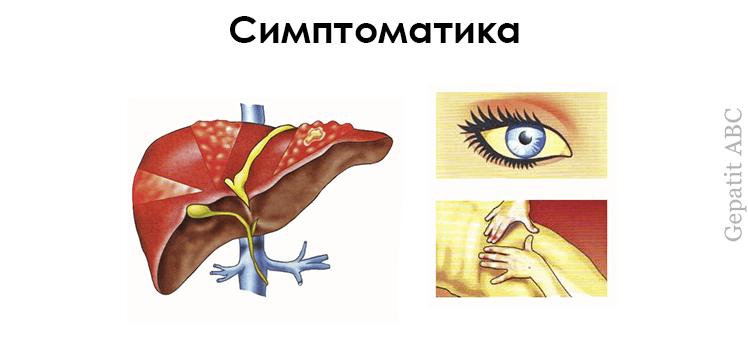 Симптомы фиброза