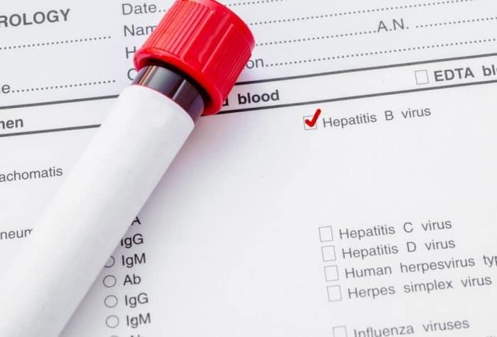 Результаты анализов гепатита в и с