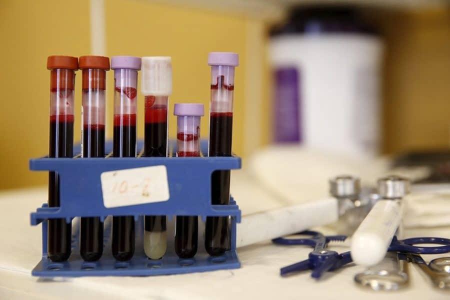 Анализы при гепатите