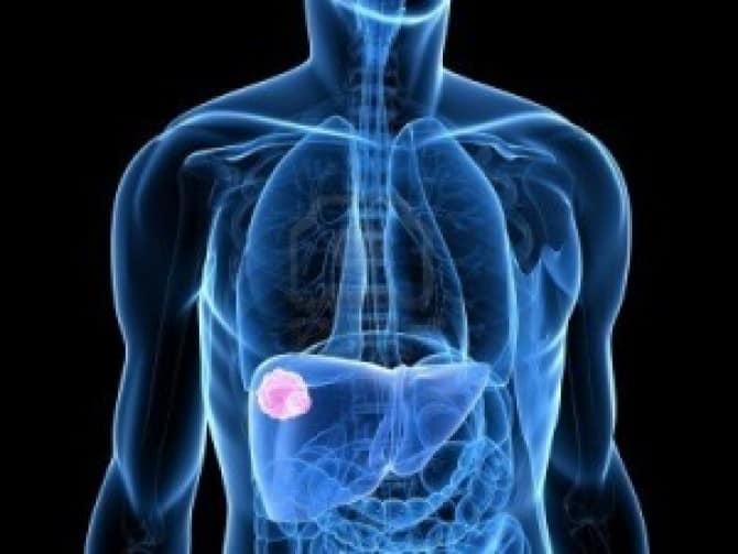 Рак печени симптомы