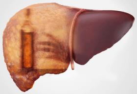 Цирроз при ВГС