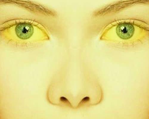 Гепатит а и желтушка
