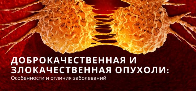 Доброкачественная и злокачественная опухоли: признаки и отличия